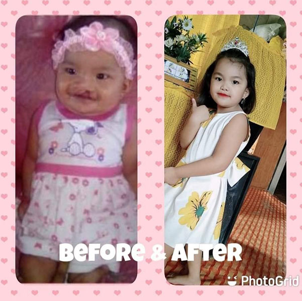 cleft palate and lip surgery
